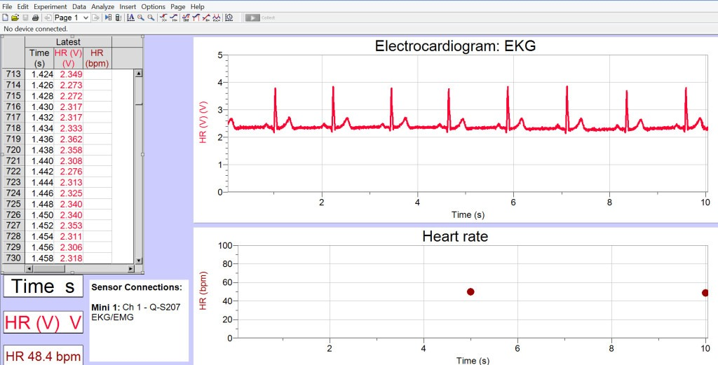 Sample EKG Data